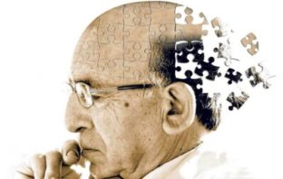 Alzheimer-disease-patients