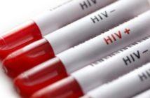 HIV - SIDA