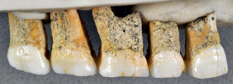 Dientes de Homo luzonensis (Callao Cave Archaeology Project)